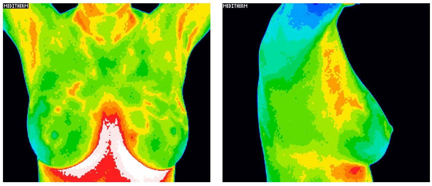 Orange County Thermography
